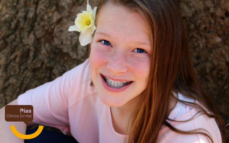 Una sonrisa con brackets metálicos es de lo más llamativa.