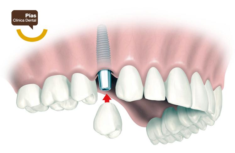 En nuestra clínica dental somos especialistas en implantología dental