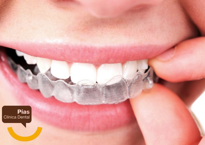 La ortodoncia invisible se compone de dos férulas transparentes