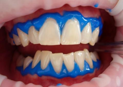 El gen blanqueador se usa durante un blanqueamiento dental para proteger los tejidos blandos de la boca
