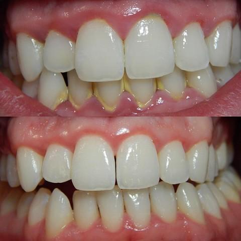 gingivitis y su tratamiento