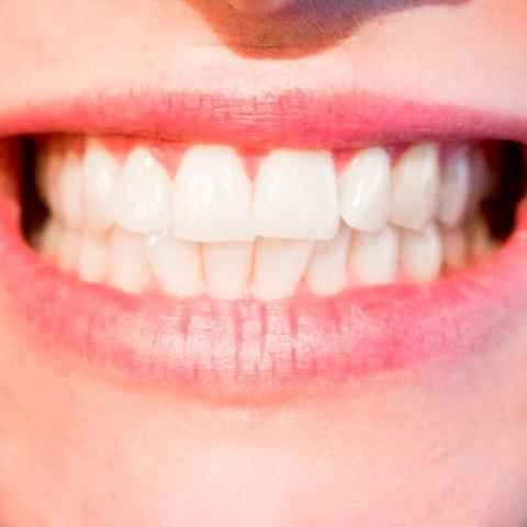 Los implantes dentales no se diferencian de las piezas originales