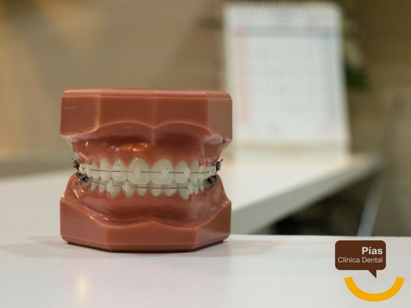 Los brackets de cerámicos se camuflan con el diente.