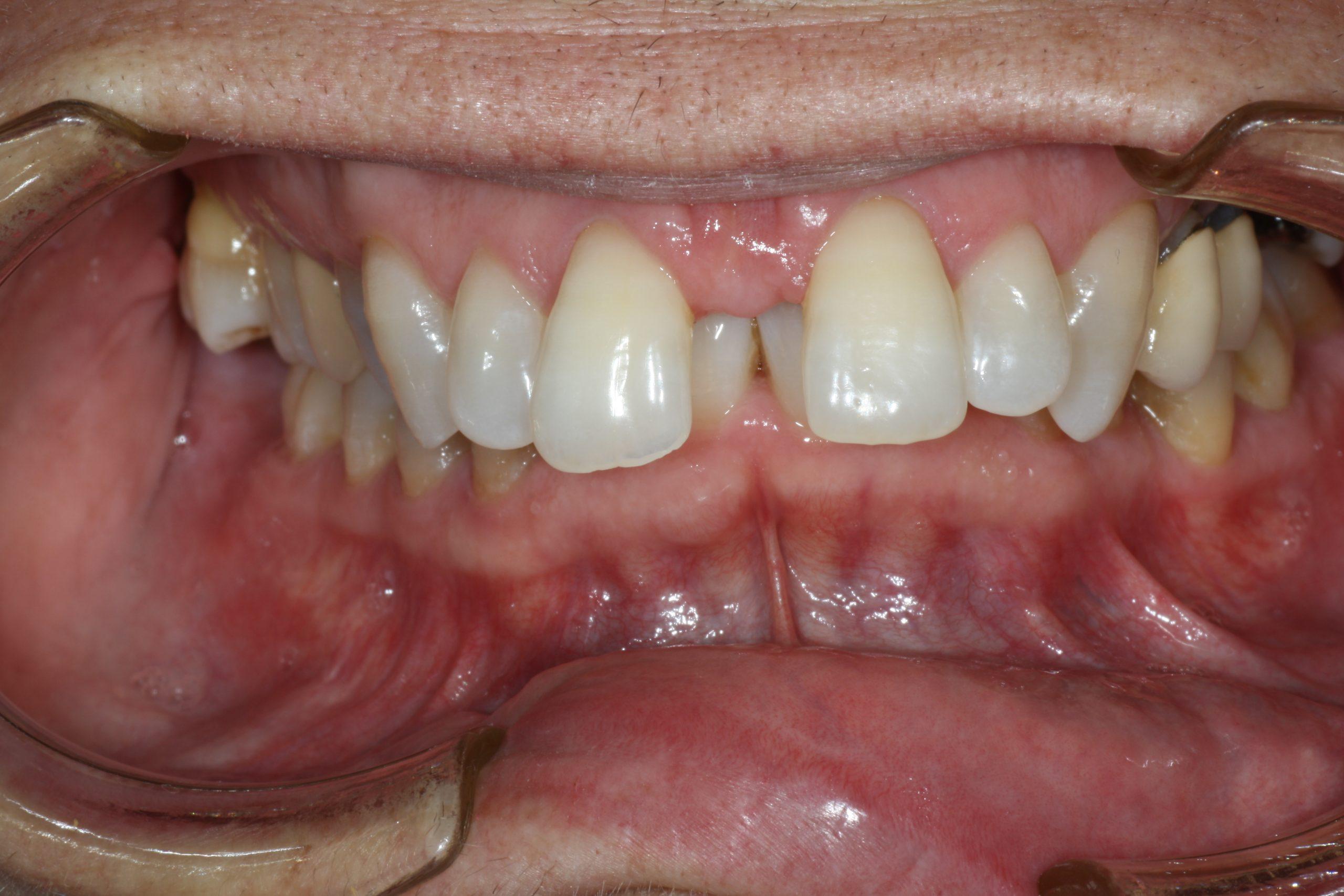 pias clinica dental-invisalign