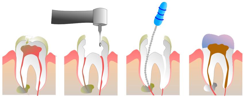 Explicación gráfica del procedimiento de la endodoncia