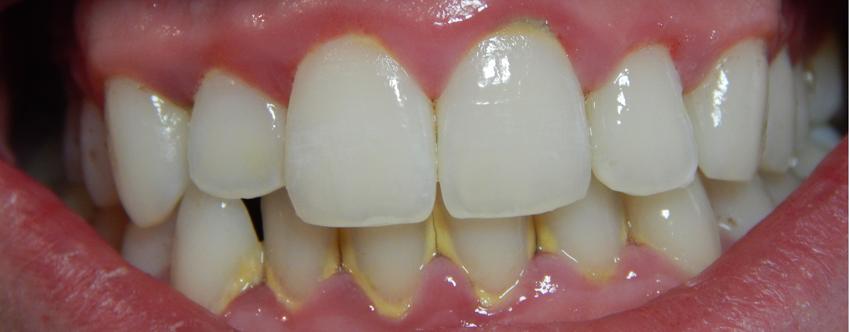 La gingivitis, uno de los ejemplos de por qué la estética dental ayuda a mejorar al salud bucodental