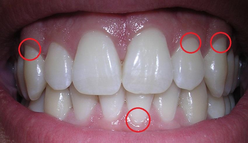 La cura de la retracción dental, estética dental y también prevención, ya que podemos llegar a perder la pieza