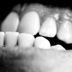 El bruxismo se caracteriza por el movimiento inconsciente de los dientes, de lado a lado