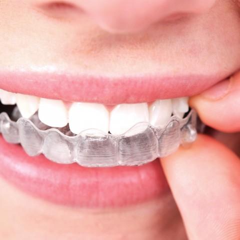 invisalign, ortodoncia invisible