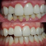 periodontitis pias clinica dental