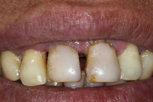 cerámicas dentales