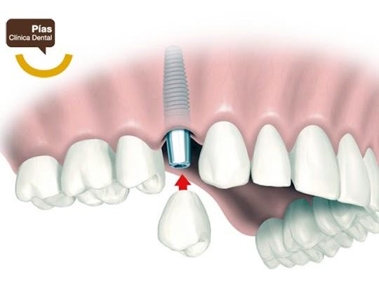 implantes dentales en santiago de compostela