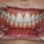 periodoncia- pias clinica dental