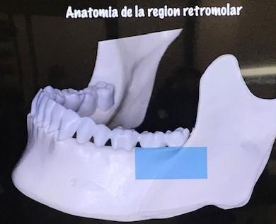 hueso para colocar implantes -pias clinica dental