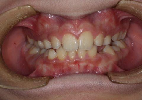piasclincadental-ortodoncia interceptiva